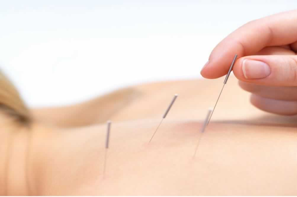 acupuntura-pode-ajudar-pacientes-com-dores-cronicas